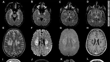 Brain scans from the University College London study, published on July 8.