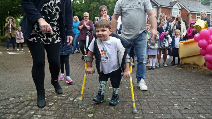 Tony Hudgell, 5-year-old boy with prosthetic legs, raises $1 million for NHS