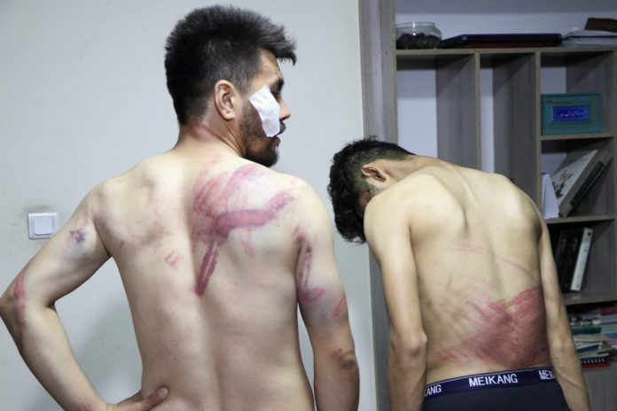 Taliban promises to shatter: photos of journalists brutally beaten up released